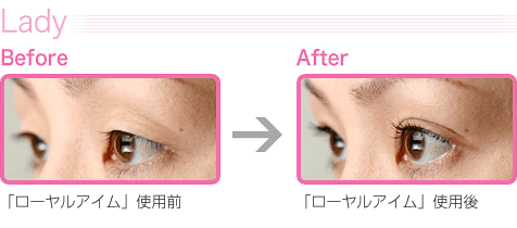 Lady|Before→After