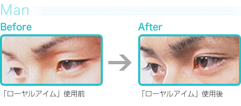 Man|Before→After
